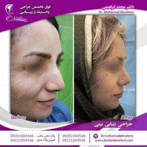 انواع روش های جراحی بینی