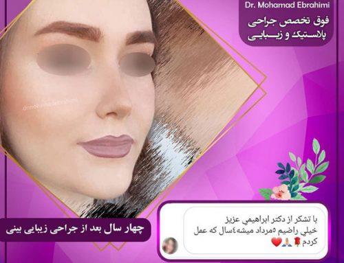 جراحی بینی در سعادت آباد
